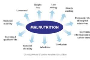 Malnutrition in Kenya